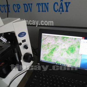Hình ảnh quan sát qua kính hiển vi Olympus CX31