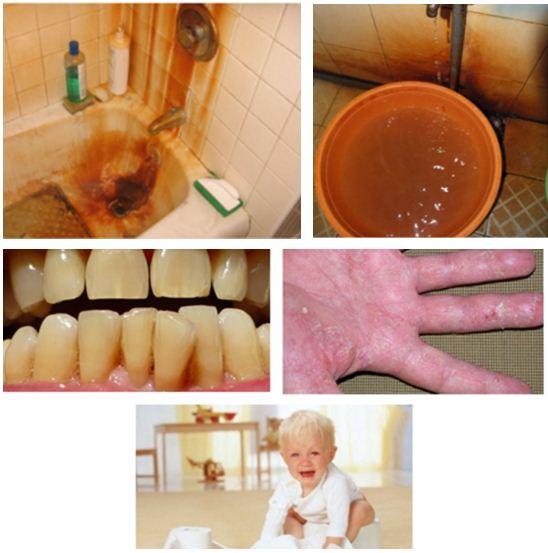 Nước nhiễm phèn gây hư hại nặng và nguy hiểm cho da người